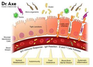 Crohn leaky gut